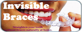 Invisibel-braces-by-Dr-Bharat-Agrvat-Ahmedabad-gujarat-India