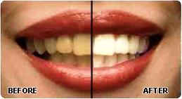 Bride and Groom Dental Smile Makeover Wedding Packages best Tooth-Whitening dental clinic Ahmedabad India