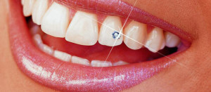 skyce tooth jewelry best dentist ahmedabad, India